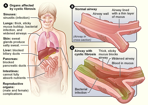 Diagram of organs that can be affected by cystic fibrosis.